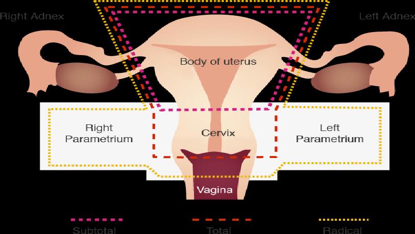 Fibroid Treatment Methods Are Worth Considering